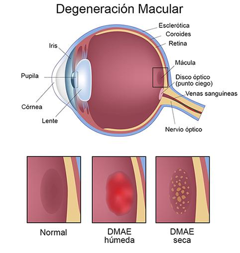 degeneración macular asociada a la edad pdf