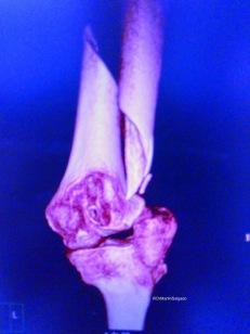 caso clinico de fractura de cuello de femur pdf
