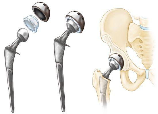 artroplastia de cadera pdf 2010
