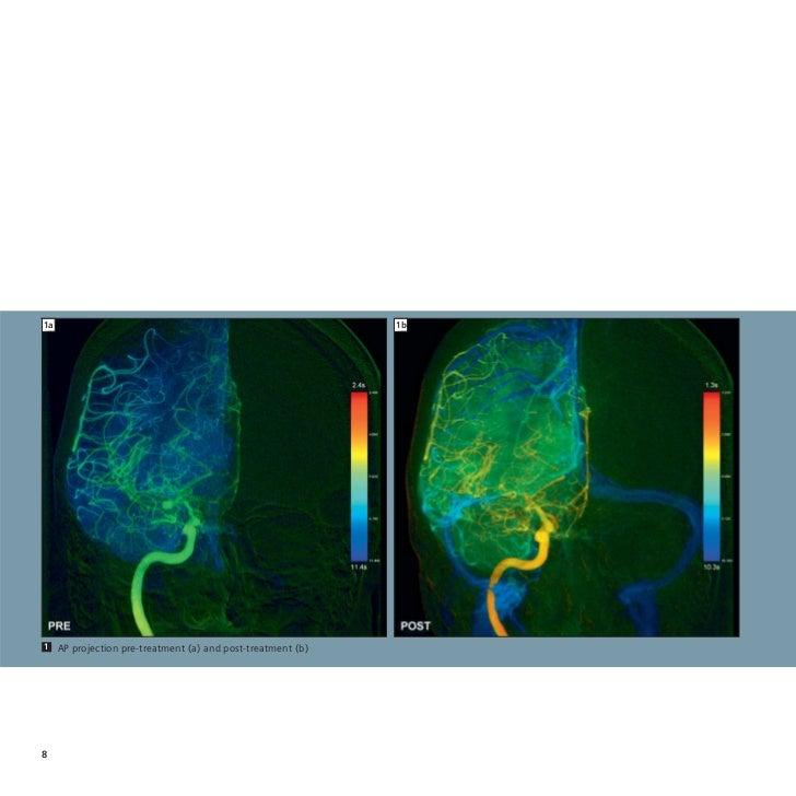 angiografia por sustraccion digital pdf