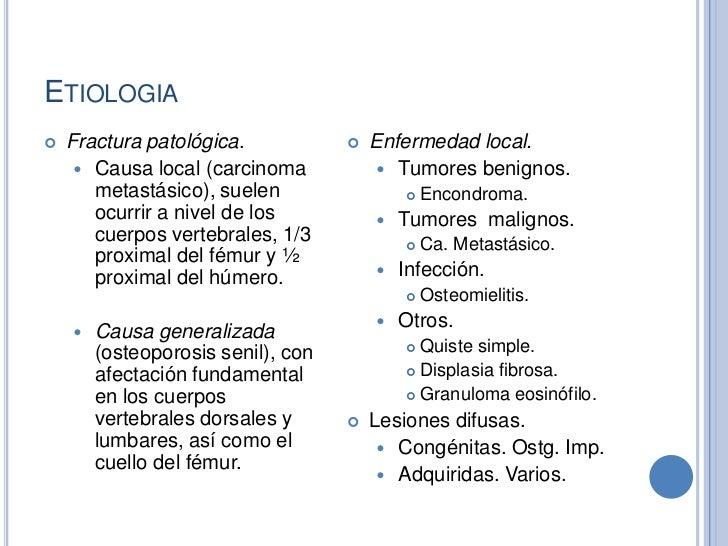 causas de las fracturas pdf
