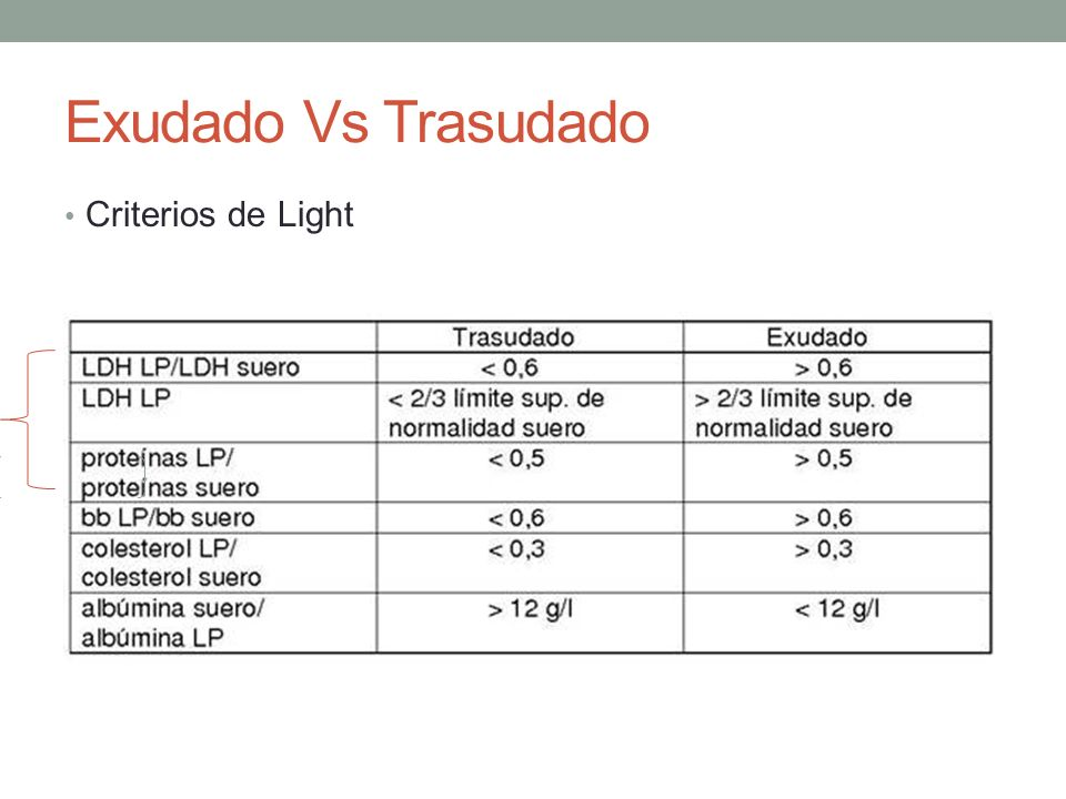 criterios de light modificados pdf